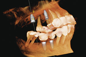 Dental Implants - Advanced Cosmetic Dentistry