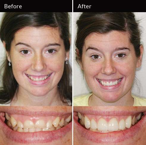 Gum surgery and veneers