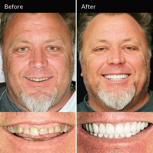 Full-mouth rehabilitation
