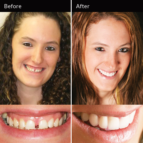 Veneers and gum recontouring