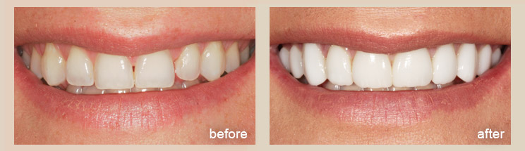 Porcelain Veneers - Advanced Cosmetic Dentistry