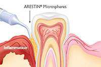 High-Tech Dentistry - Arestin Therapy - Advanced Cosmetic Dentistry