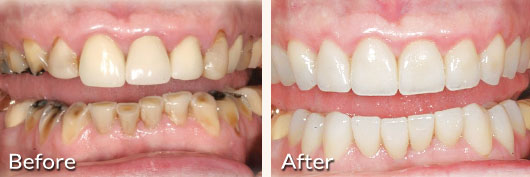 Worn-Down Teeth | Advanced Cosmetic and General Dentistry