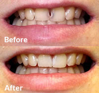 Advanced Cosmetic Dentistry - Cosmetic Bonding
