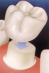 Porcelain Crowns, Onlays and Inlays