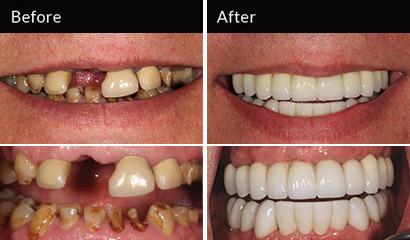 david-teeth