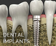 feature-dental-implants