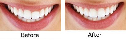 Laser Cosmetic Gum Treatment