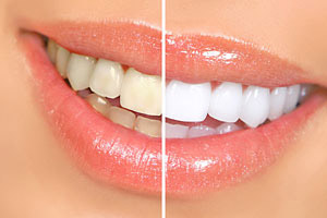 Teeth Whitening - Advanced Cosmetic Dentistry